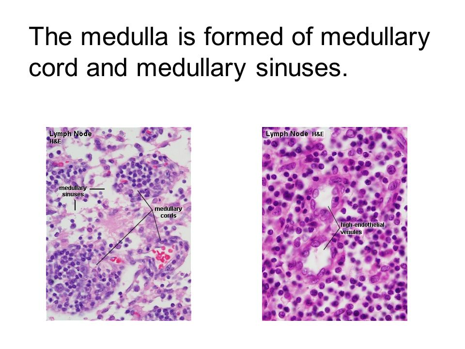 The medulla is formed of medullary cord and medullary sinuses.