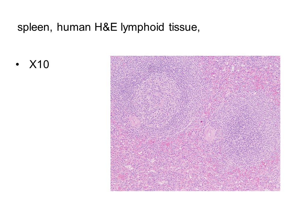 spleen, human H&E lymphoid tissue,