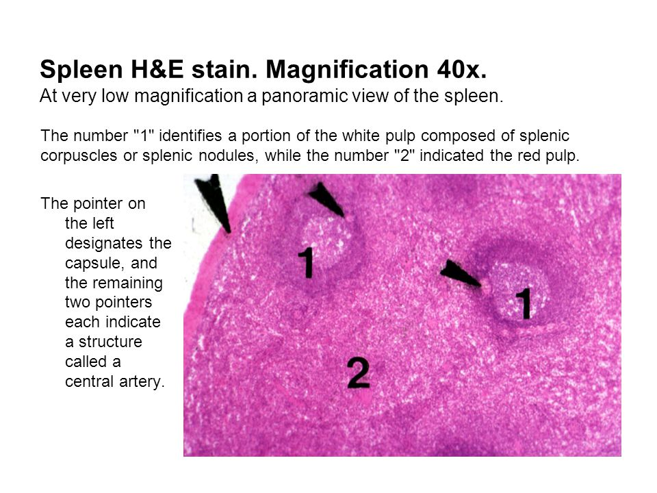 Spleen H&E stain. Magnification 40x