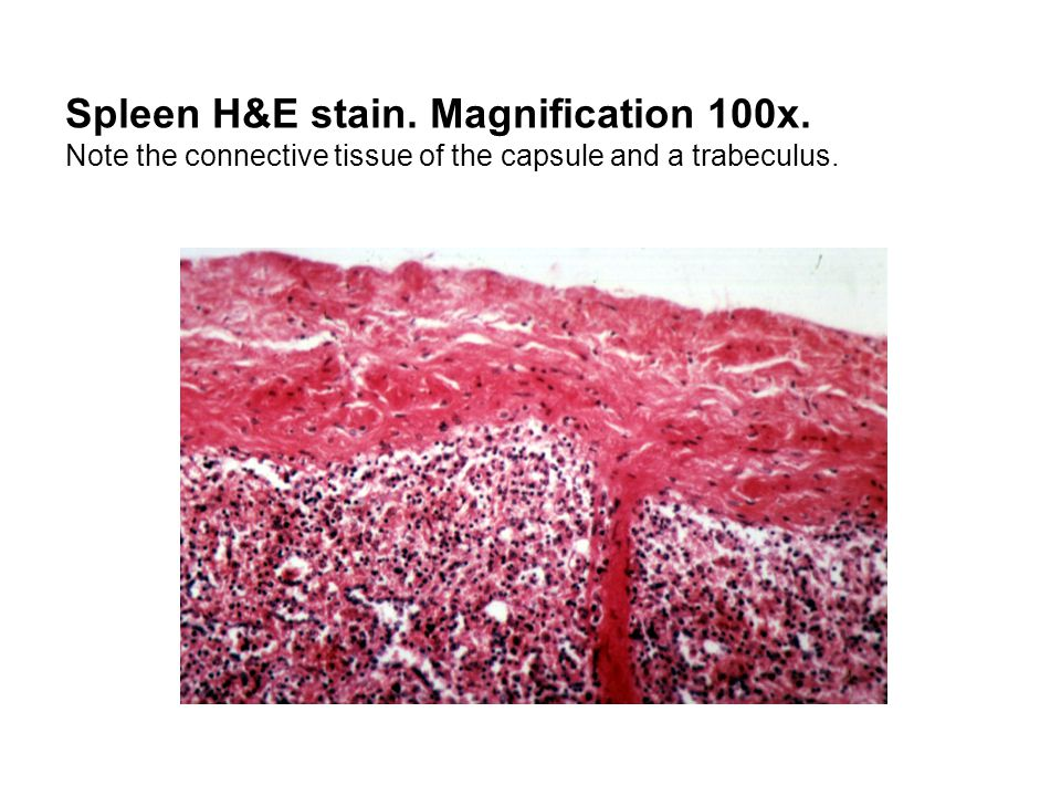 Spleen H&E stain. Magnification 100x