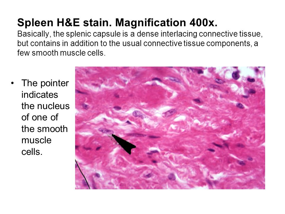 Spleen H&E stain. Magnification 400x