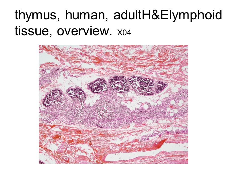 thymus, human, adultH&Elymphoid tissue, overview. X04