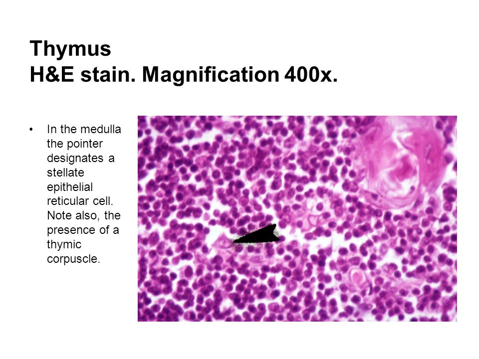 Thymus H&E stain. Magnification 400x.