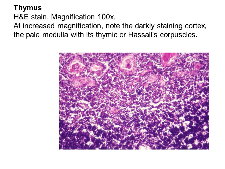 Thymus H&E stain. Magnification 100x