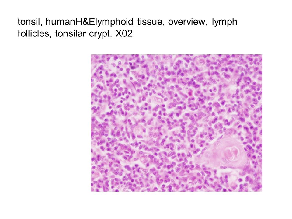 tonsil, humanH&Elymphoid tissue, overview, lymph follicles, tonsilar crypt. X02