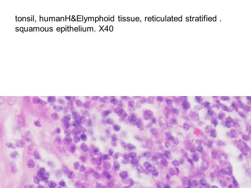 tonsil, humanH&Elymphoid tissue, reticulated stratified