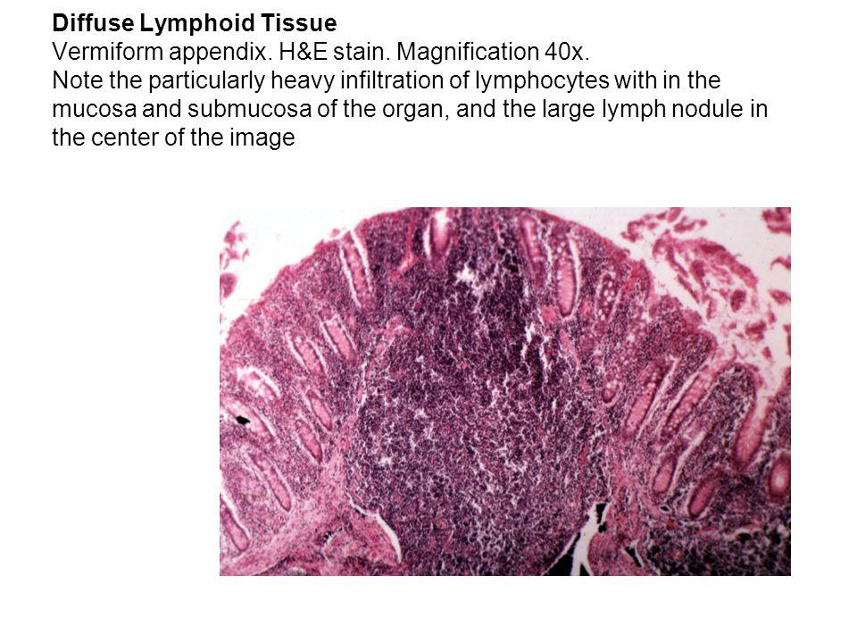 Diffuse Lymphoid Tissue Vermiform appendix. H&E stain