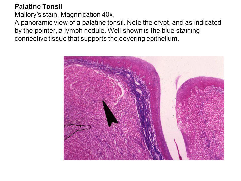 Palatine Tonsil Mallory s stain. Magnification 40x