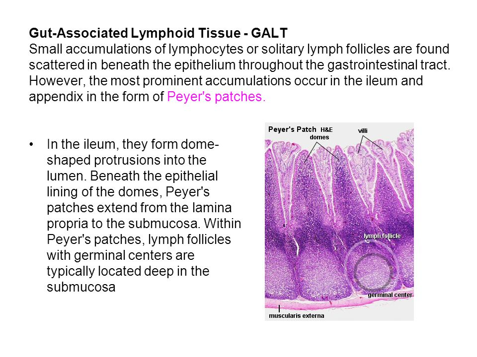 Gut-Associated Lymphoid Tissue - GALT Small accumulations of lymphocytes or solitary lymph follicles are found scattered in beneath the epithelium throughout the gastrointestinal tract. However, the most prominent accumulations occur in the ileum and appendix in the form of Peyer s patches.