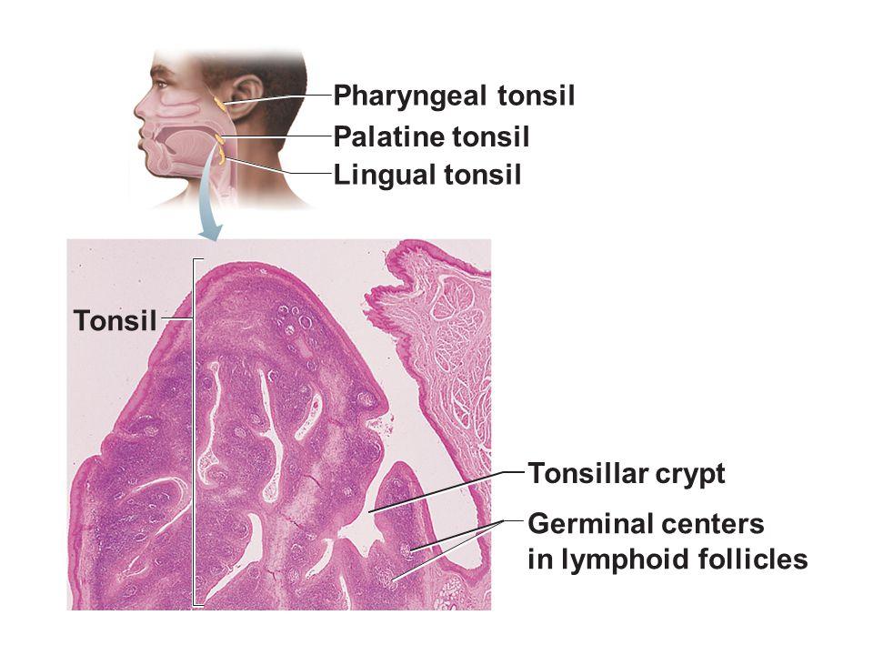 Pharyngeal tonsil Palatine tonsil Lingual tonsil Tonsil