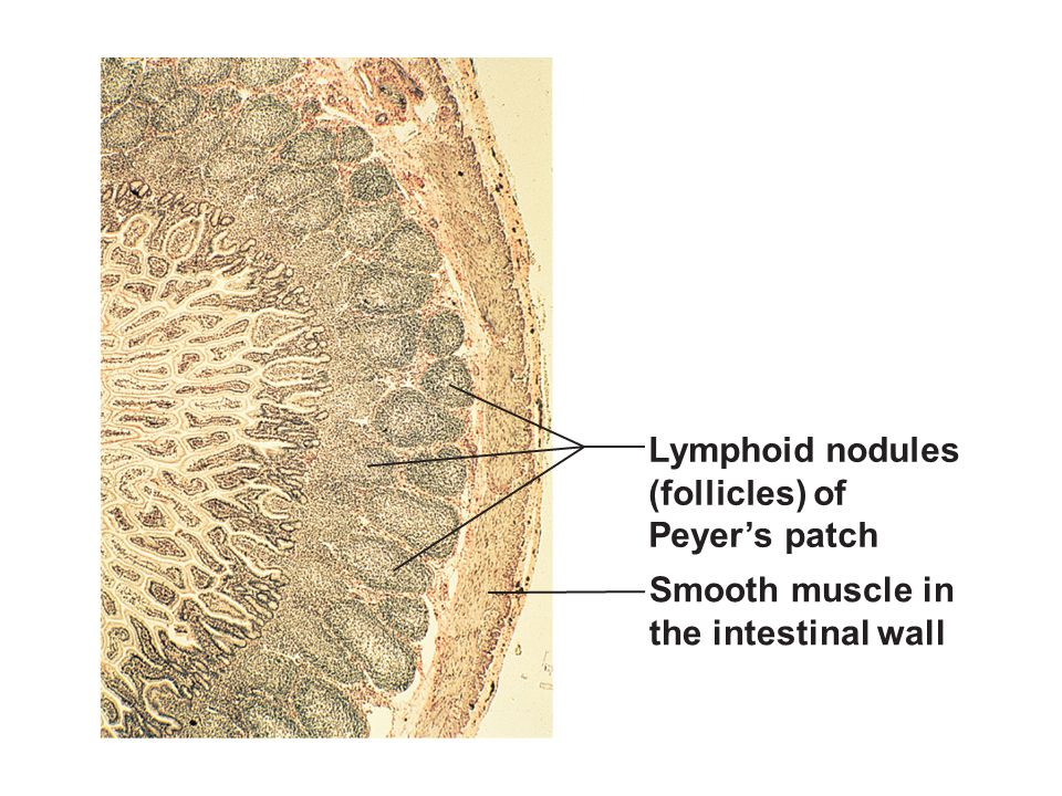 Lymphoid nodules (follicles) of Peyer's patch Smooth muscle in