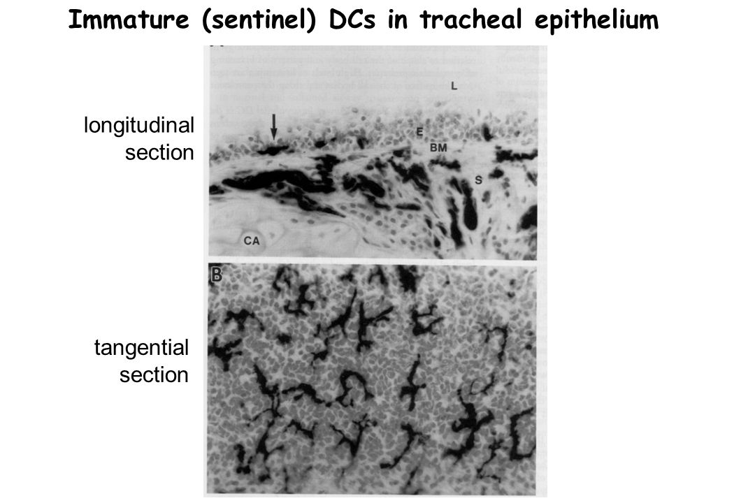 Immature (sentinel) DCs in tracheal epithelium