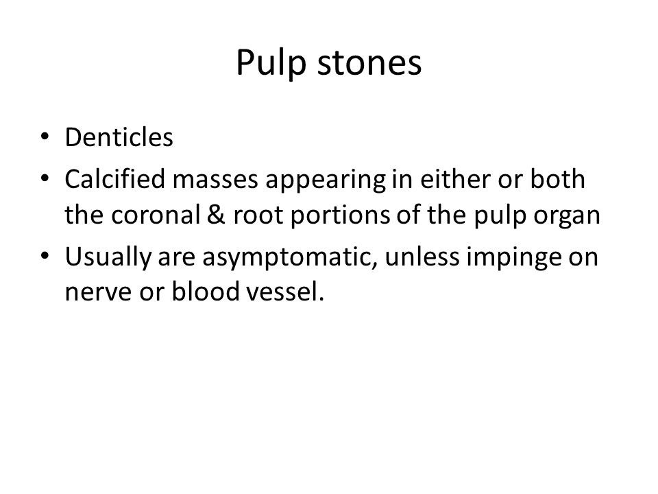 Pulp stones Denticles. Calcified masses appearing in either or both the coronal & root portions of the pulp organ.