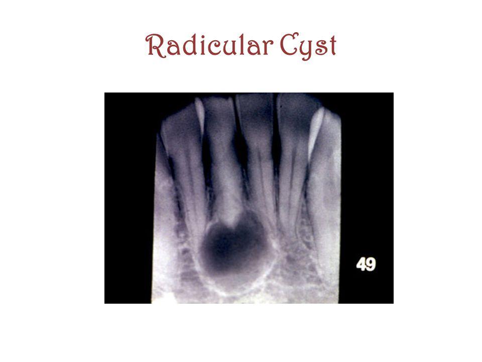 Radicular Cyst
