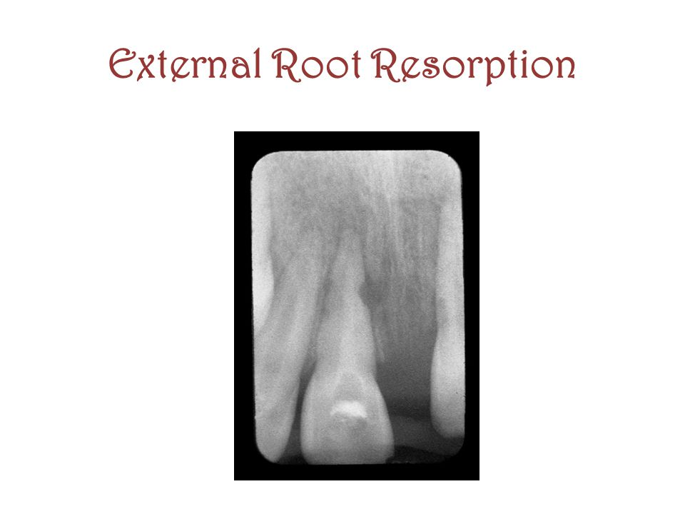 External Root Resorption