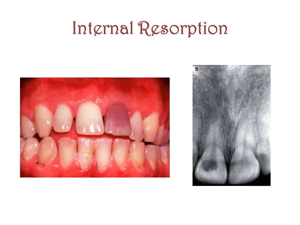 Internal Resorption