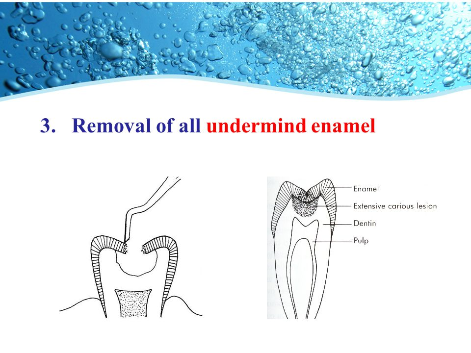 Removal of all undermind enamel