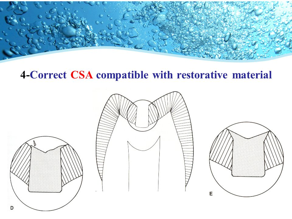 4-Correct CSA compatible with restorative material