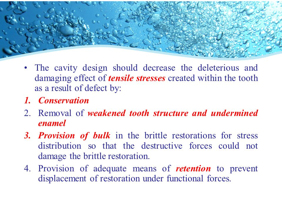 The cavity design should decrease the deleterious and damaging effect of tensile stresses created within the tooth as a result of defect by: