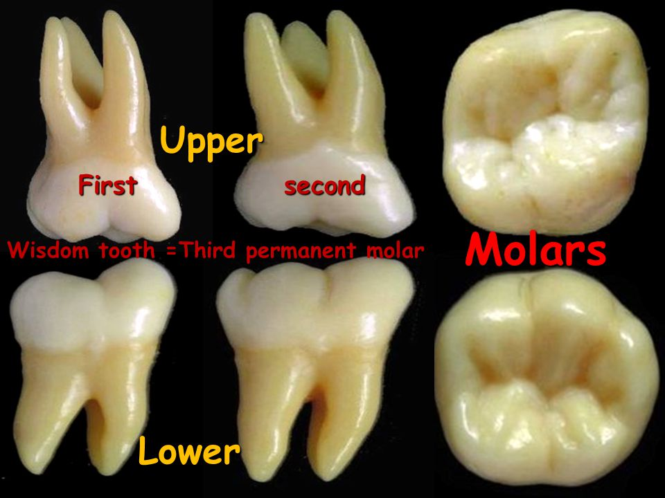 Upper First second Molars Wisdom tooth =Third permanent molar Lower