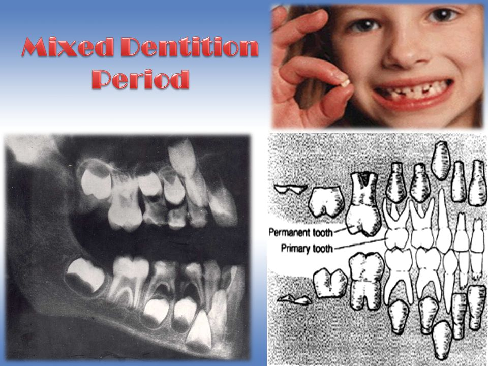 Mixed Dentition Period