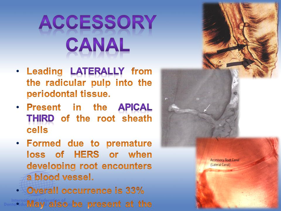 ACCESSORY CANAL Leading laterally from the radicular pulp into the periodontal tissue. Present in the apical third of the root sheath cells.