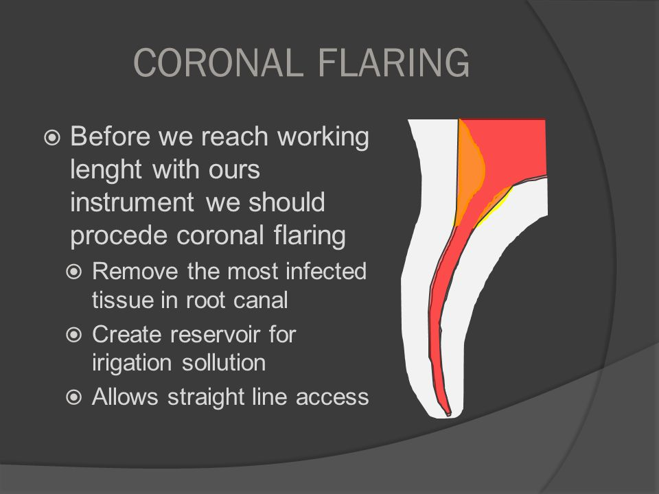 CORONAL FLARING Before we reach working lenght with ours instrument we should procede coronal flaring.