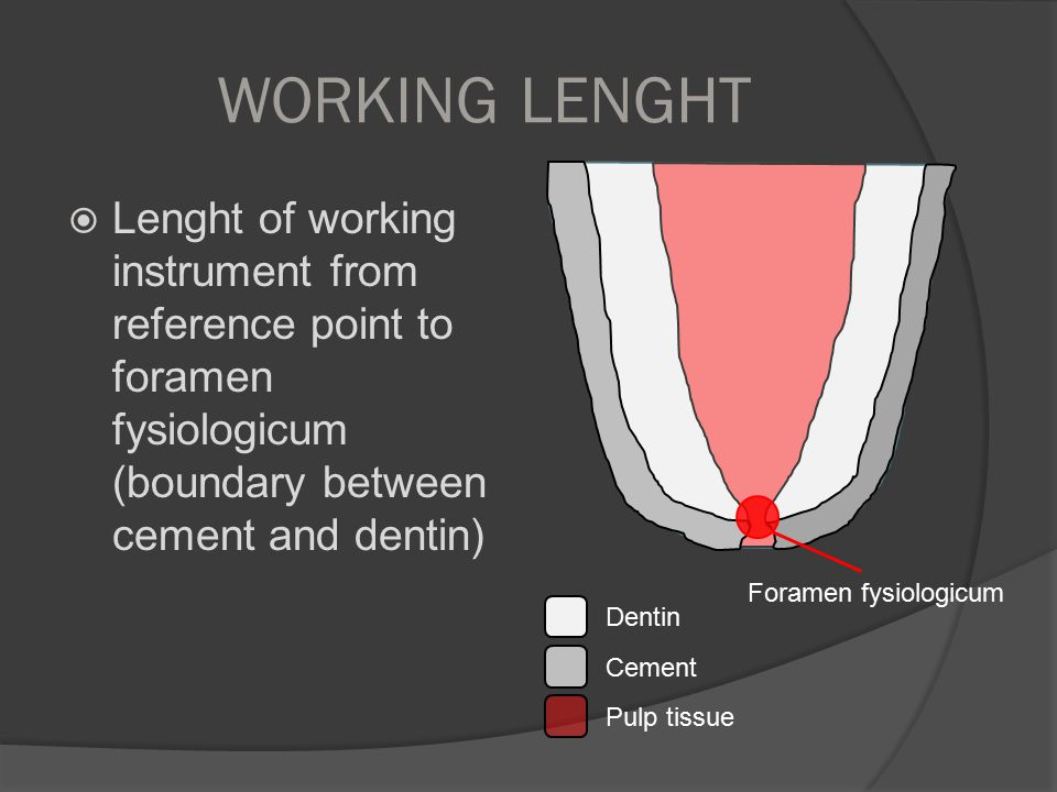 WORKING LENGHT Lenght of working instrument from reference point to foramen fysiologicum (boundary between cement and dentin)