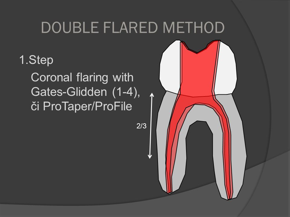 DOUBLE FLARED METHOD 1.Step Coronal flaring with Gates-Glidden (1-4), či ProTaper/ProFile 2/3