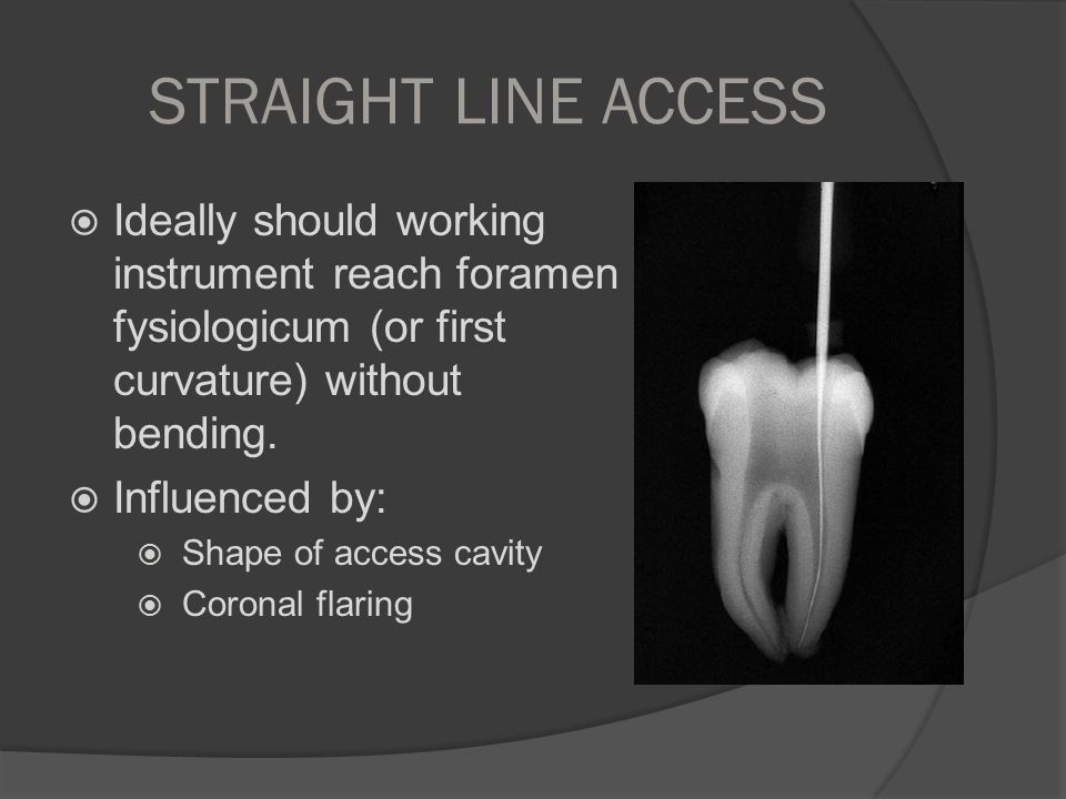 STRAIGHT LINE ACCESS Ideally should working instrument reach foramen fysiologicum (or first curvature) without bending.