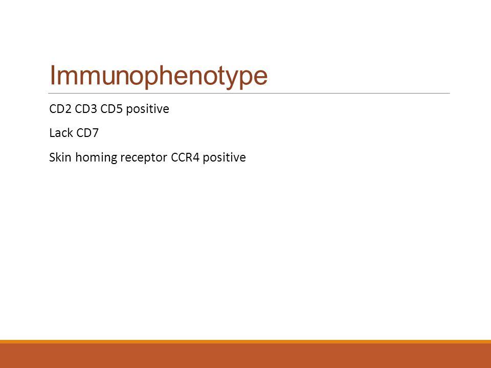 Immunophenotype CD2 CD3 CD5 positive Lack CD7
