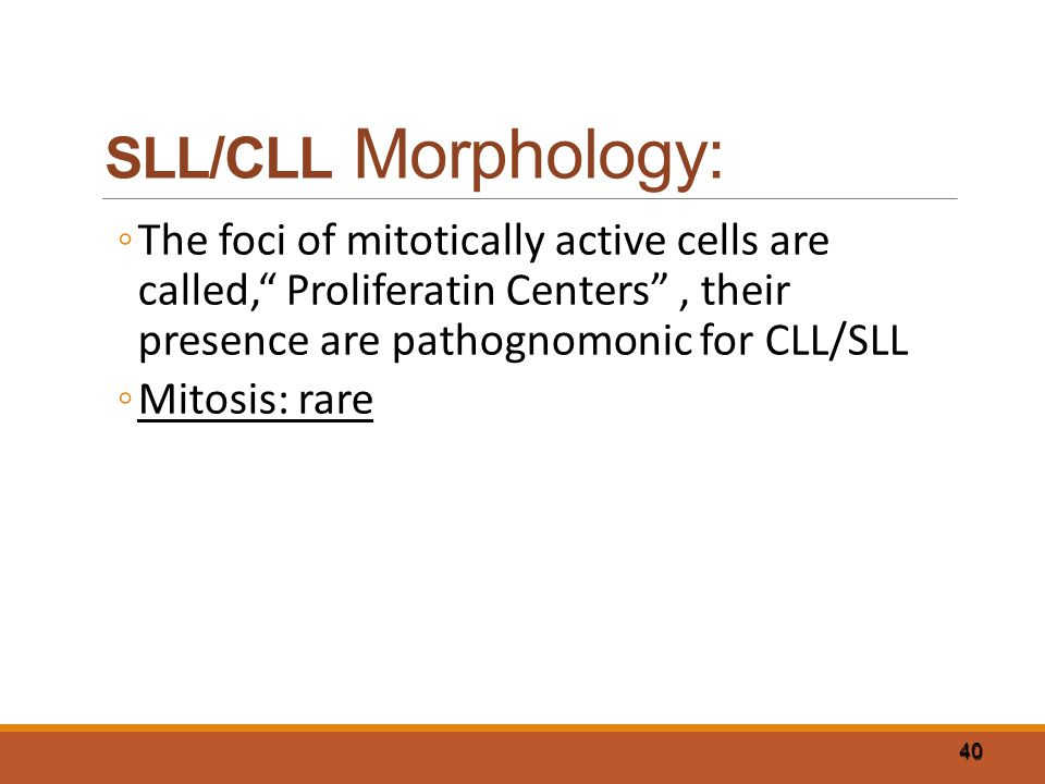 SLL/CLL Morphology: The foci of mitotically active cells are called, Proliferatin Centers , their presence are pathognomonic for CLL/SLL.
