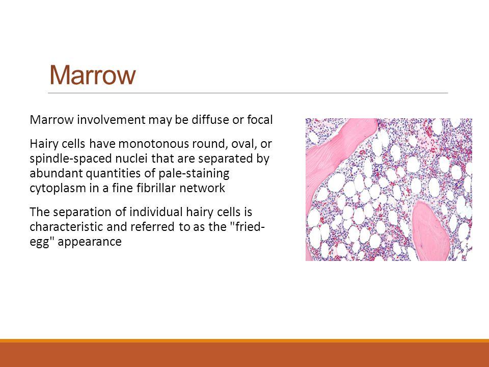 Marrow Marrow involvement may be diffuse or focal