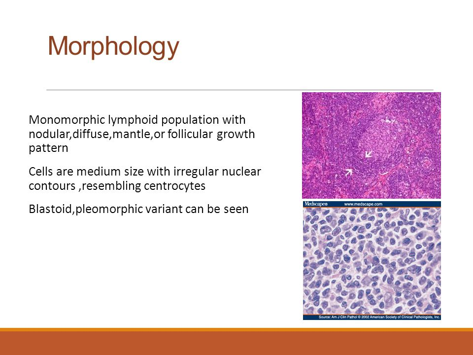 Morphology Monomorphic lymphoid population with nodular,diffuse,mantle,or follicular growth pattern.