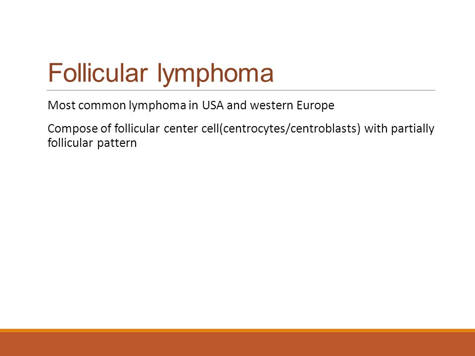 Follicular lymphoma Most common lymphoma in USA and western Europe