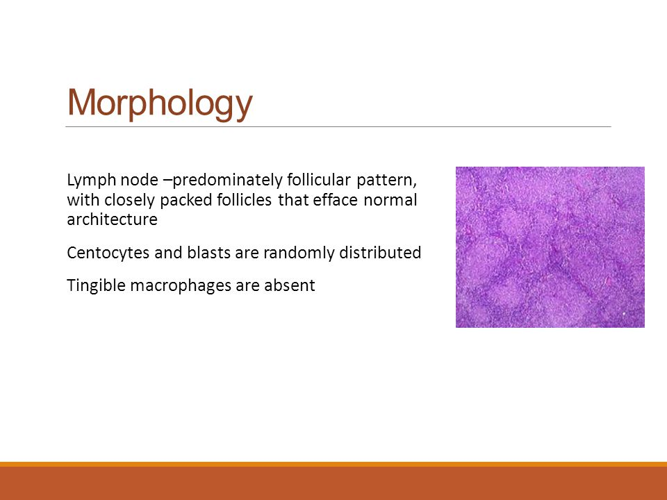 Morphology Lymph node –predominately follicular pattern, with closely packed follicles that efface normal architecture.