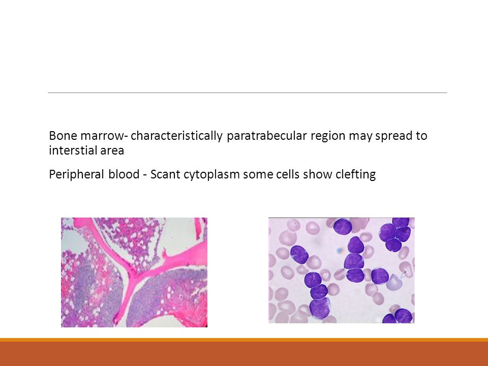 Bone marrow- characteristically paratrabecular region may spread to interstial area