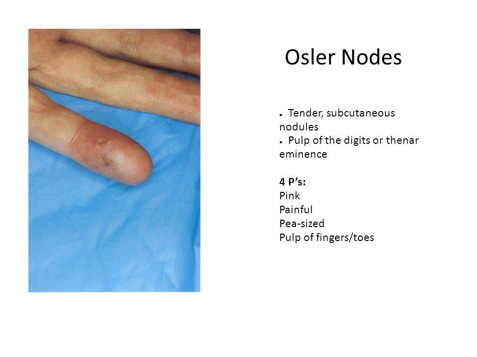 Osler Nodes Tender, subcutaneous nodules
