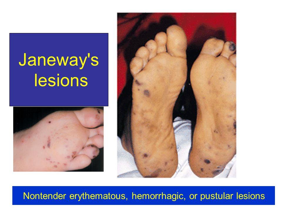 Nontender erythematous, hemorrhagic, or pustular lesions