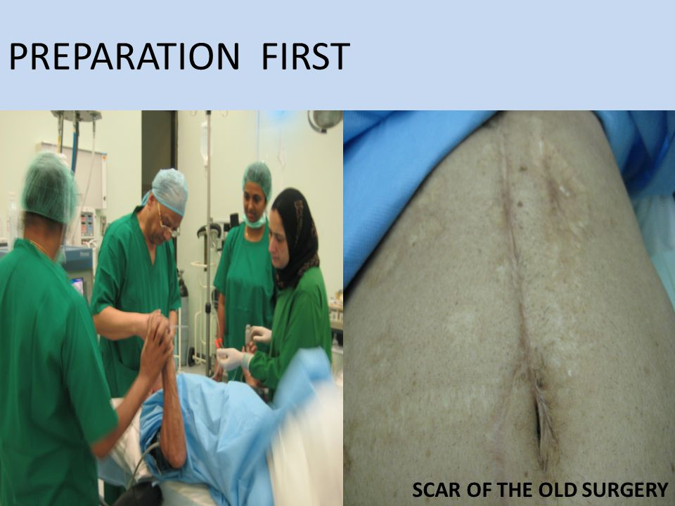 PREPARATION FIRST SCAR OF THE OLD SURGERY