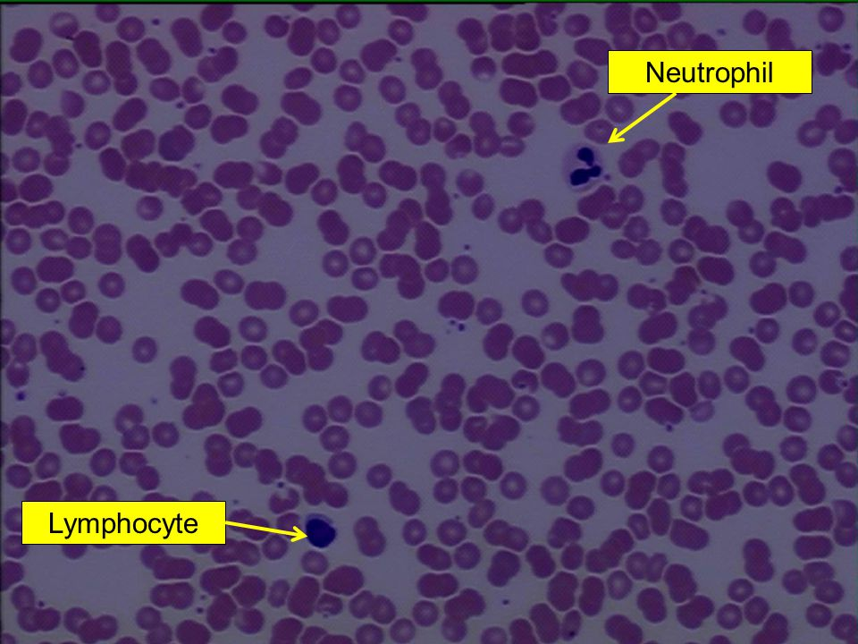Neutrophil Lymphocyte