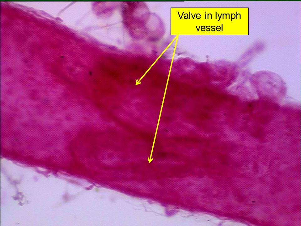 Valve in lymph vessel
