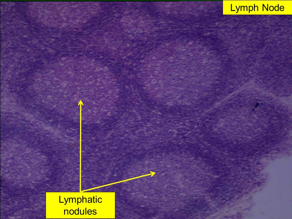 Lymph Node Lymphatic nodules