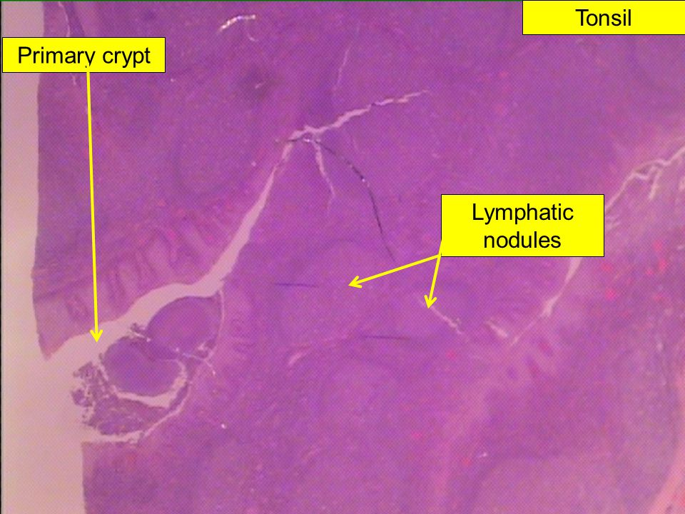Tonsil Primary crypt Lymphatic nodules