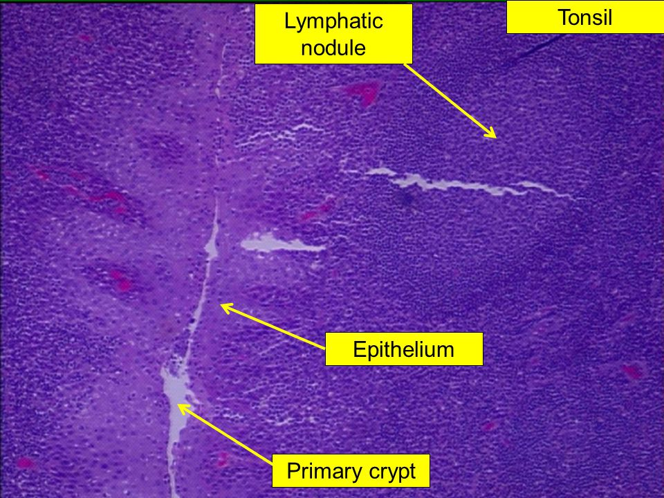Lymphatic nodule Tonsil Epithelium Primary crypt