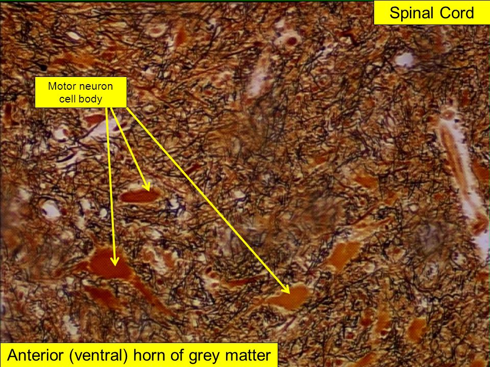 Anterior (ventral) horn of grey matter