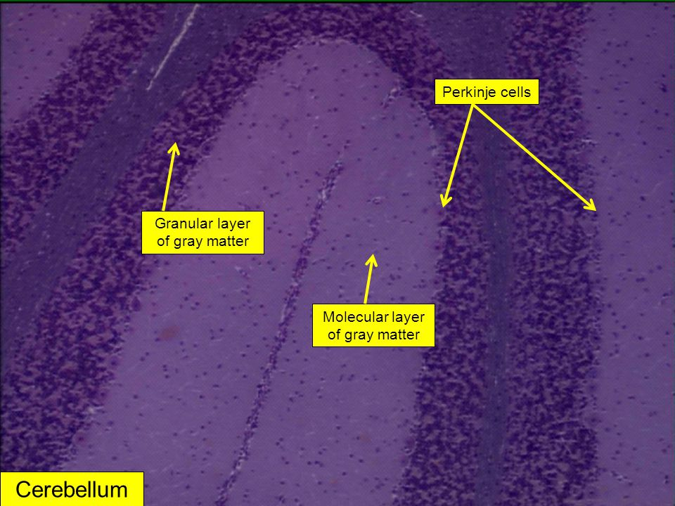 Cerebellum Perkinje cells Granular layer of gray matter