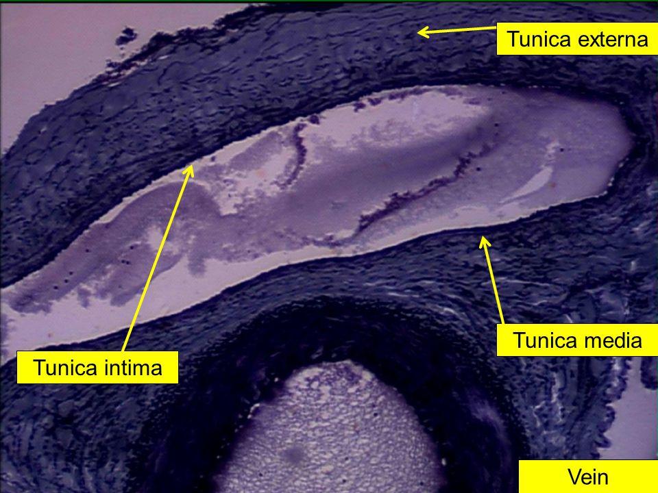Tunica externa Tunica media Tunica intima Vein