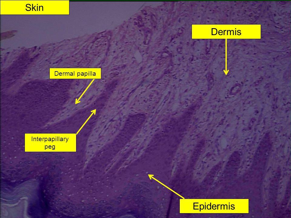 Skin Dermis Dermal papilla Interpapillary peg Epidermis