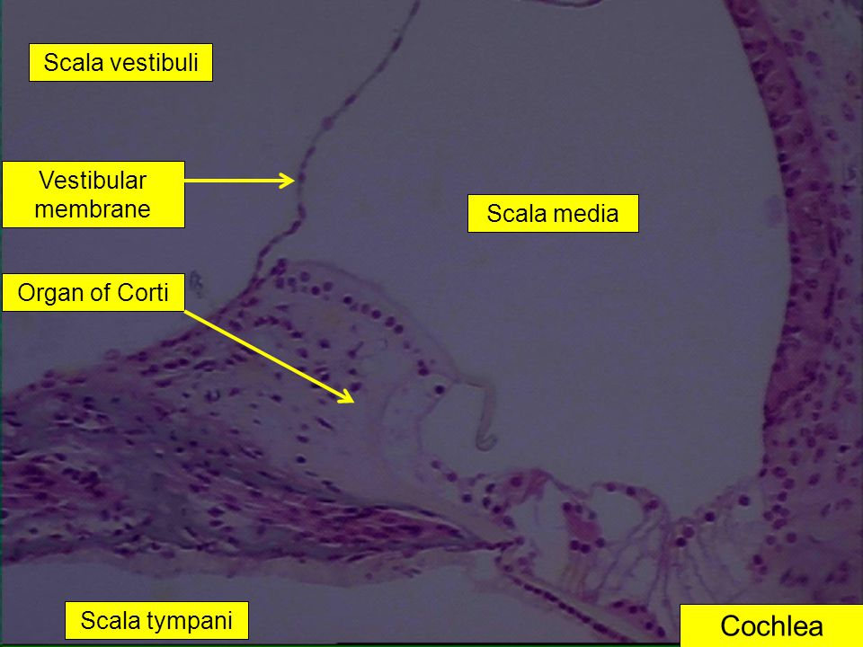 Cochlea Scala vestibuli Vestibular membrane Scala media Organ of Corti